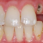 Dental Implant #1