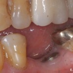 Dental Implant #2