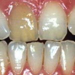 Bleaching and Cosmetic Bonding #3